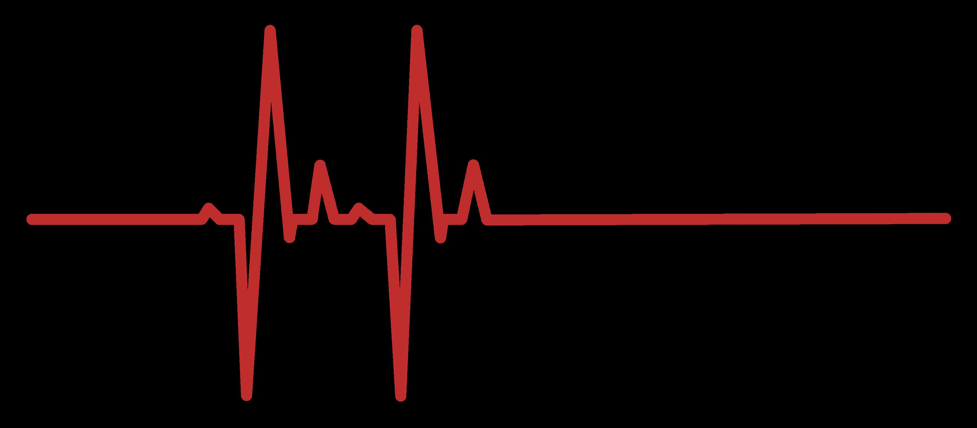 Heartbeat-Line